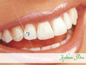 скайсы (стразы) на зубы