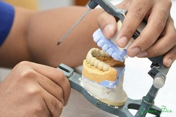 изготовление балочного протеза