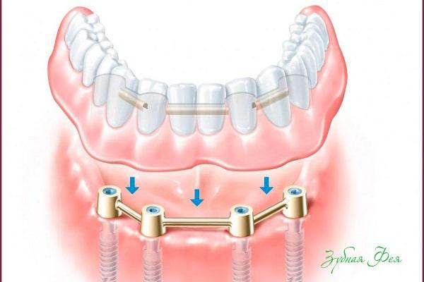 структура протеза включает съемную и несъемную часть