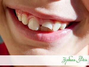 травма зуба у ребенка