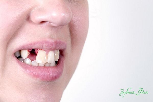 удален зуб