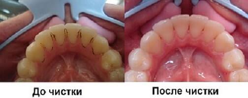 """удаление зубного камня в стоматологии """"Зубная Фея"""""""