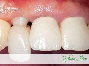 """установка индивидуального абатмента из диоксида циркония в стоматологии """"Зубная Фея"""""""