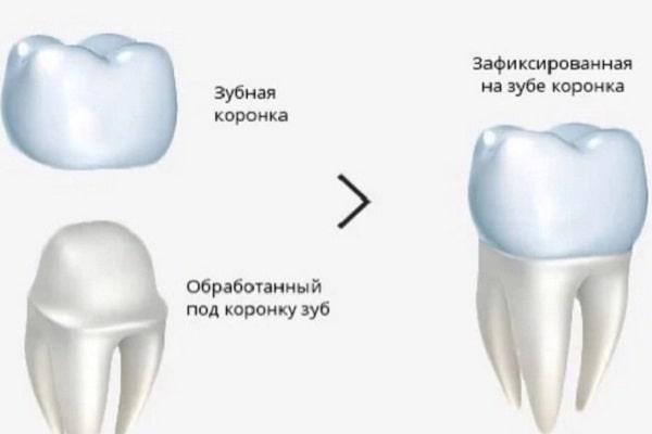установка коронки на корень зуба
