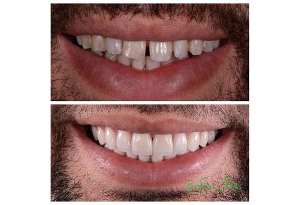 виниры на зубах фото до и после