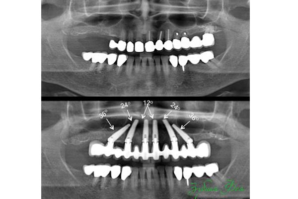 внешнее соединение абатмент и имплантат