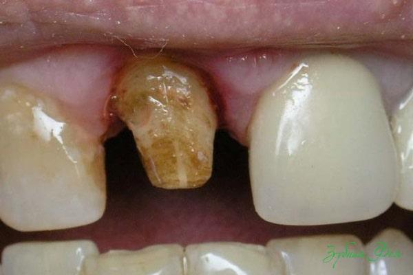 зуб после снятия коронки