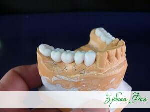 """зубные коронки в стоматологии """"Зубная Фея"""""""