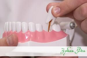 """зубные протезы в стоматологии """"Зубная Фея"""""""
